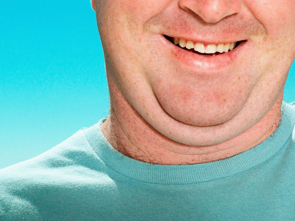 Double-Chin-Removal-
